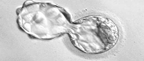 Diagnóstico Genético Pré-Implantação