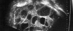 Síndrome da Hiperestimulação Ovariana
