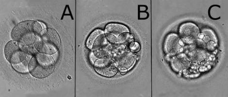 Qualidade dos embriões
