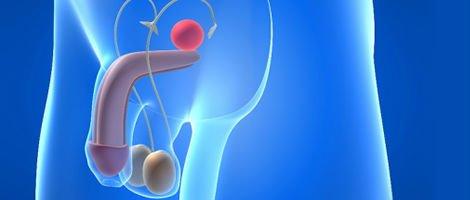 Esterilidade masculina devido a um factor testicular