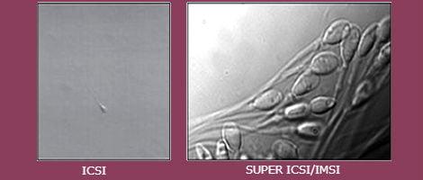IMSI – Microinjecção Intracitoplasmática de Espematozóides Morfologicamente Selecionados