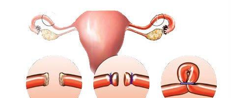 Laqueadura das trompas e gravidez