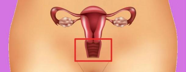 Esterilidade Feminina devido a um Factor Cervical