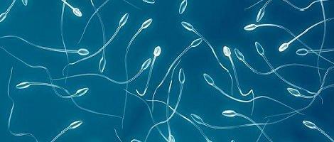 Espermatozóides de Doador