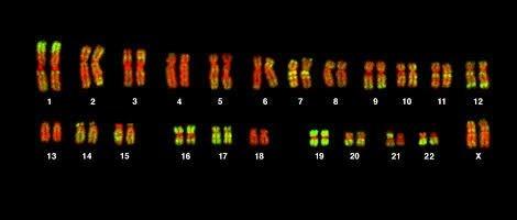 Exames genéticos do feto