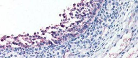 Hormona estimulante dos folículos