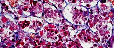 Hormona Estimulante dos Folículos (FSH)