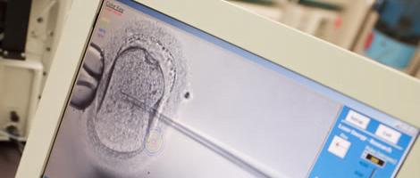 Cultura de Embriões até a fase de Blastocisto